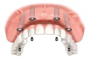 Ersatz von allen Zähnen im oberen Kiefer