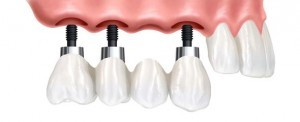 Ersatz von mehreren Zähnen durch eine Zahnbrücke getragen von den Implantaten