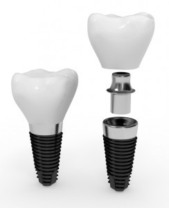 dental_implants-244x300