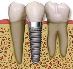 Ersatz eines Zahnes durch ein Implantat